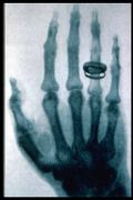 Roentgen X-ray (23 Jan. 1896).