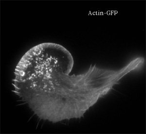 A GFP label of the actin cytoskeleton in a melanoma cell, showing a ruffled-edge lamellipodium, from Cell Biology at IMB Salzburg.