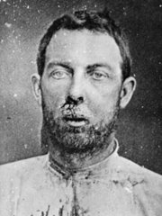 A wounded Jim Younger after his arrest in 1876